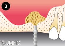 歯科のインプラントトラブル
